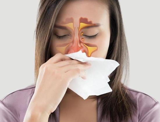 Obat Sinusitis Tanpa Operasi | Terbukti Sembuh !