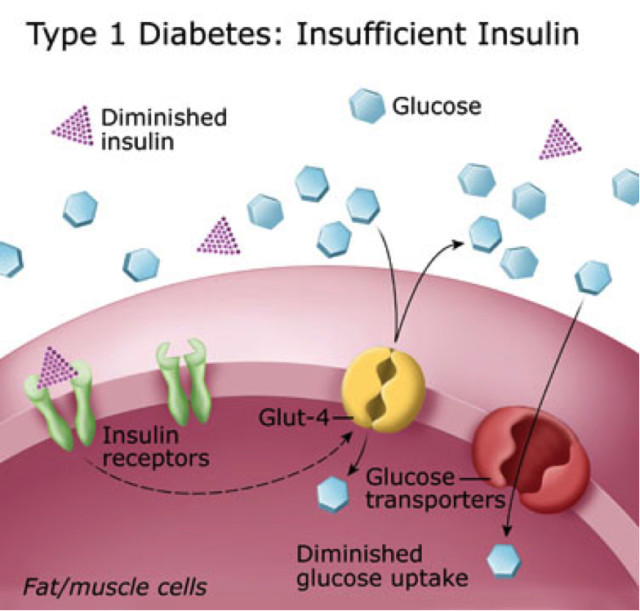 Papers On Diabetes Type Diabetes Research Papers Type Diabetes