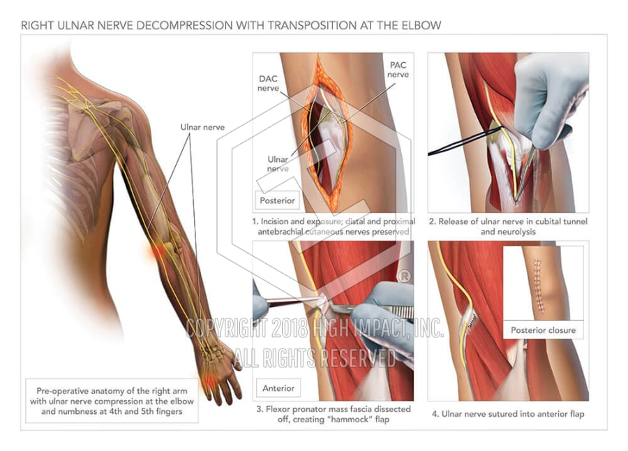 ulnar nerve diagram grundfos booster pump wiring decompression with transposition high impact visual