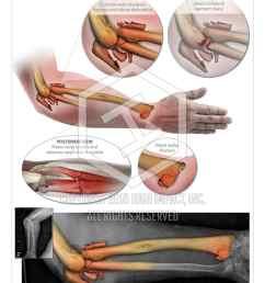 right arm injuries and repair [ 900 x 1192 Pixel ]