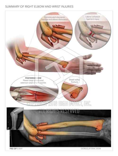 small resolution of right arm injuries and repair