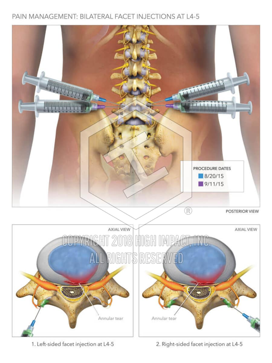 hight resolution of lumbar facet joint injections
