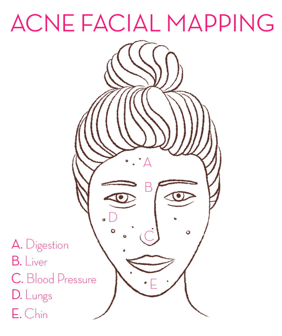 what causes acne diagram polaris snowmobile wiring how to use facial mapping reduce breakouts hum nutrition blog out in the same regions regularly is an interesting way take a deeper look at our skin and wellness starts within