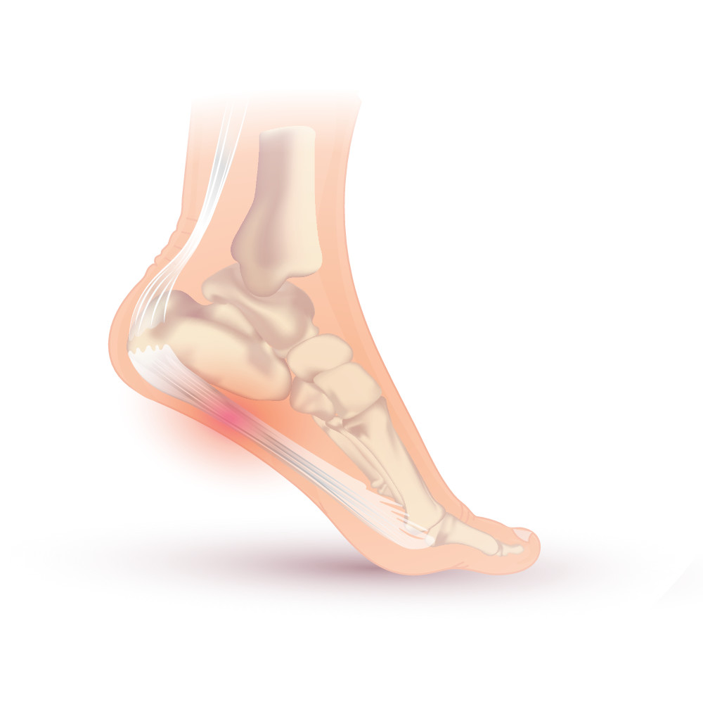hight resolution of plantar fasciitis heel spur
