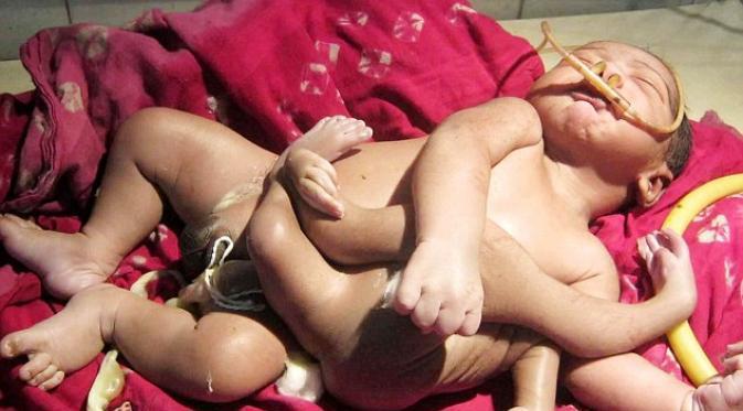 bayi-unik-titisan-dewa-telah-lahir-di-india