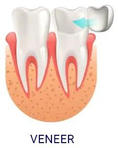 DentalVeneer-e1589609784824