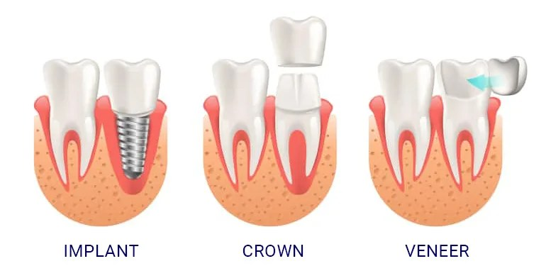 DentalImplants_vs_Crowns_VS_Veneers-e1589609843348