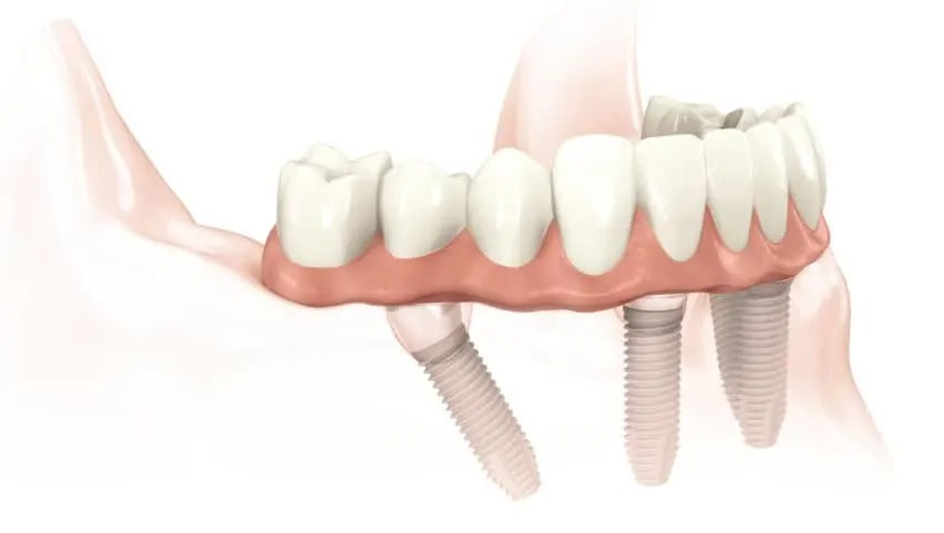 allon4dentalimplant-1024x682-1-e1589551194289