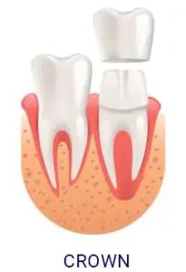 DentalCrown-e1589609727931