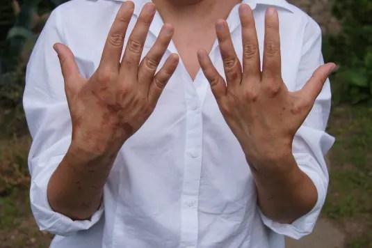 Cicatrici de Heracleum mantegazzianum la o saptămână după contact