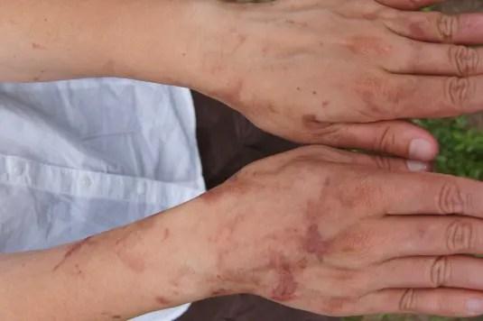 Cicatrici de Heracleum mantegazzianum la o săptămână după contact
