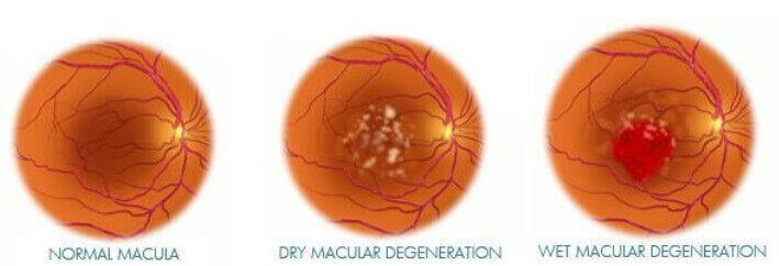 Classification of Late AMD