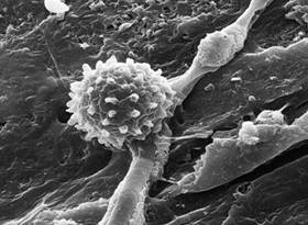 A highly magnified image of a soil microbe