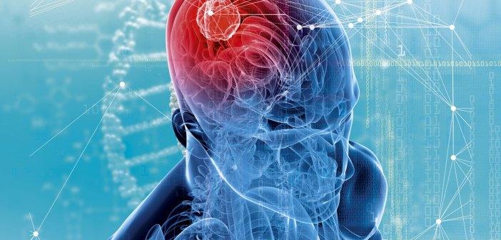 AI cancer diagnosis