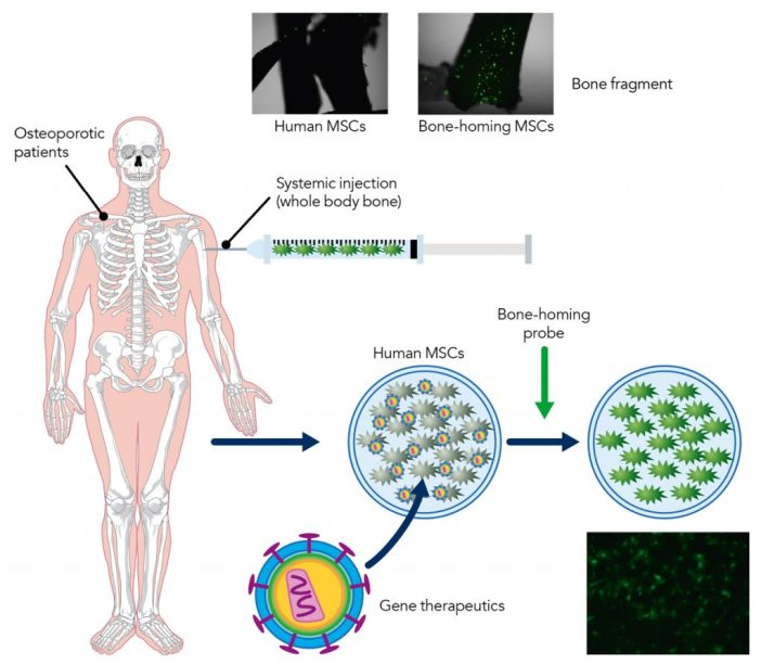 mesenchymal stem cell-based therapy for osteoporosis.
