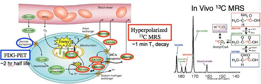 differences between FDG-PET C-pyruvate DNP MRS