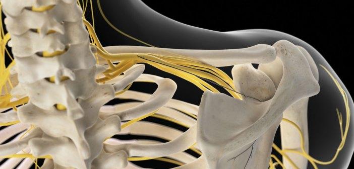 obstetric brachial plexus injury