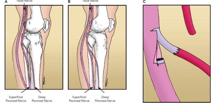foot drop surgery