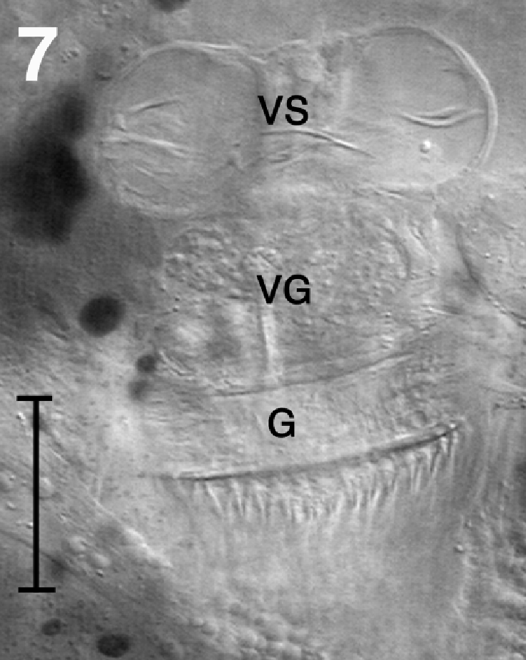 Seminal vesicle | Radiology Reference Article