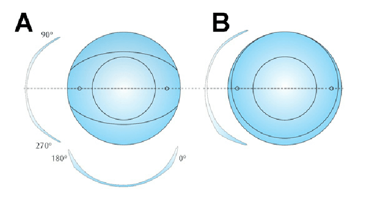 Soft Toric Contact Lens Design. A. Dynamic Toric