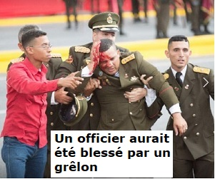 militaire_blesse-9b61f