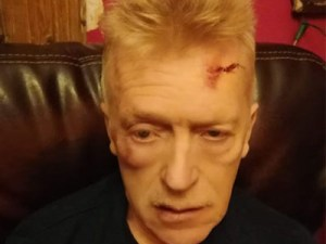 Covid-19 – Le visage en sang après une intervention policière pour un repas entre amis