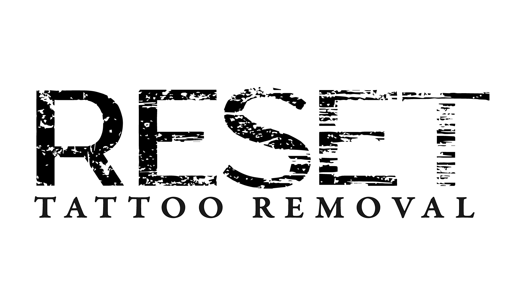 Reset Tattoo Removal