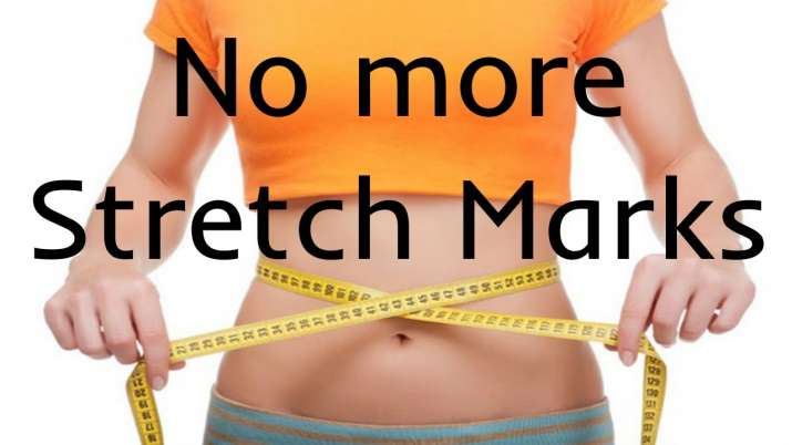 Want to get rid of stretch marks? Follow these easy four ...
