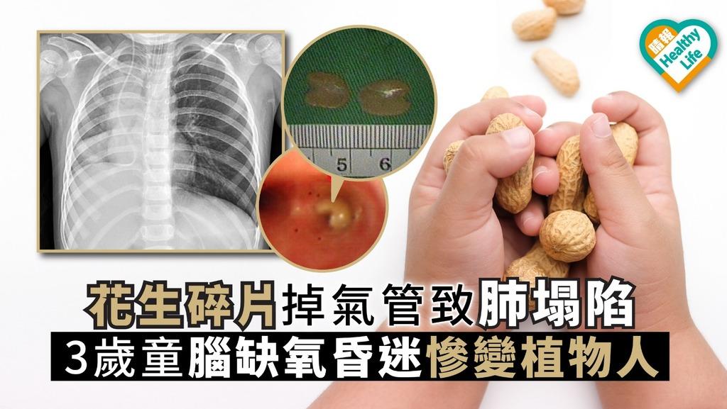 花生碎片掉氣管致肺塌陷 3歲童腦缺氧昏迷慘變植物人 - 晴報 - 健康 - 兒科百問 - D191028