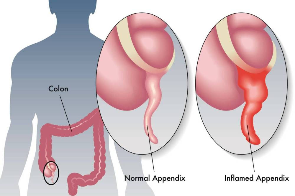 medium resolution of is it appendicitis or just a sore tummy