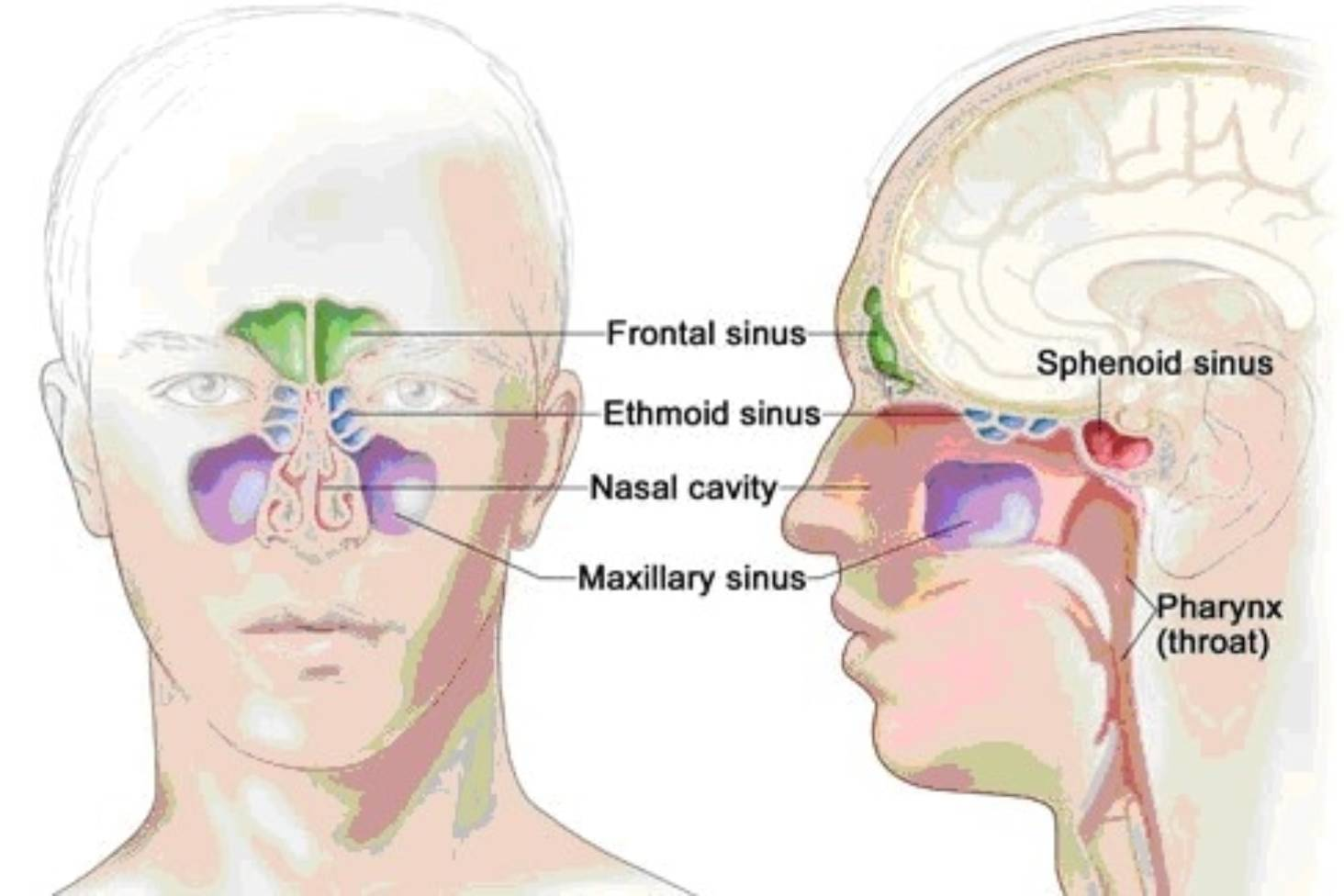hight resolution of sinu pain diagram