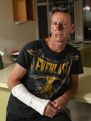 Glen Colless on the mend at his Gold Coast home. Picture: Regi Varghese