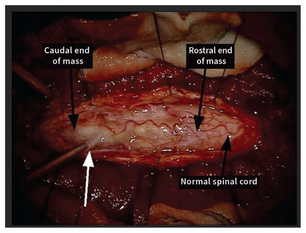 Olfactory mucosa stem cell tumor
