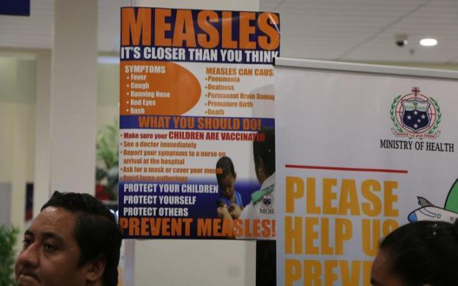 Measles in Samoa
