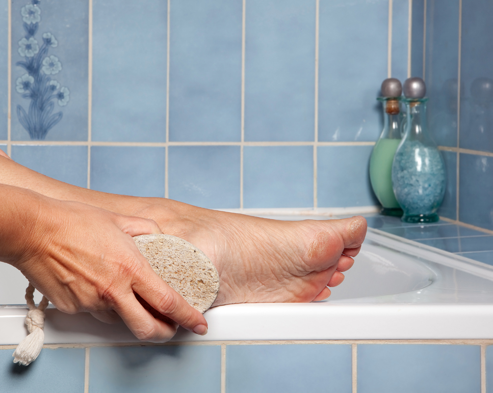 Pumice stone removing callus