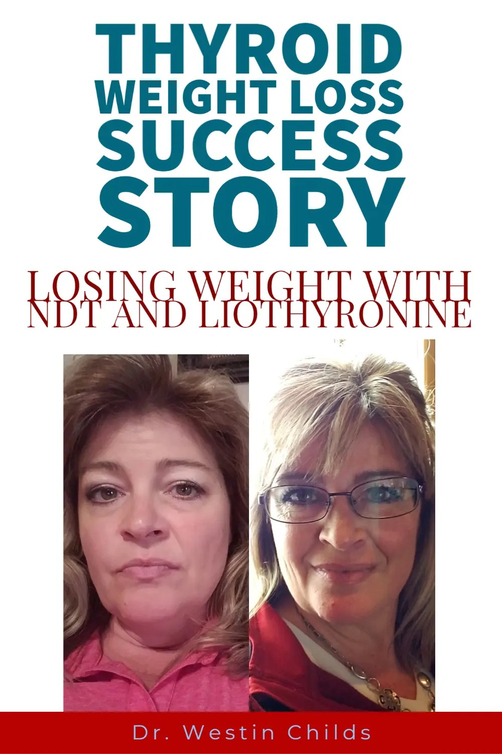 Losing Weight With Hypothyroidism Success Stories : losing, weight, hypothyroidism, success, stories, Thyroid, Success, Story:, Adding, Weight, Energy