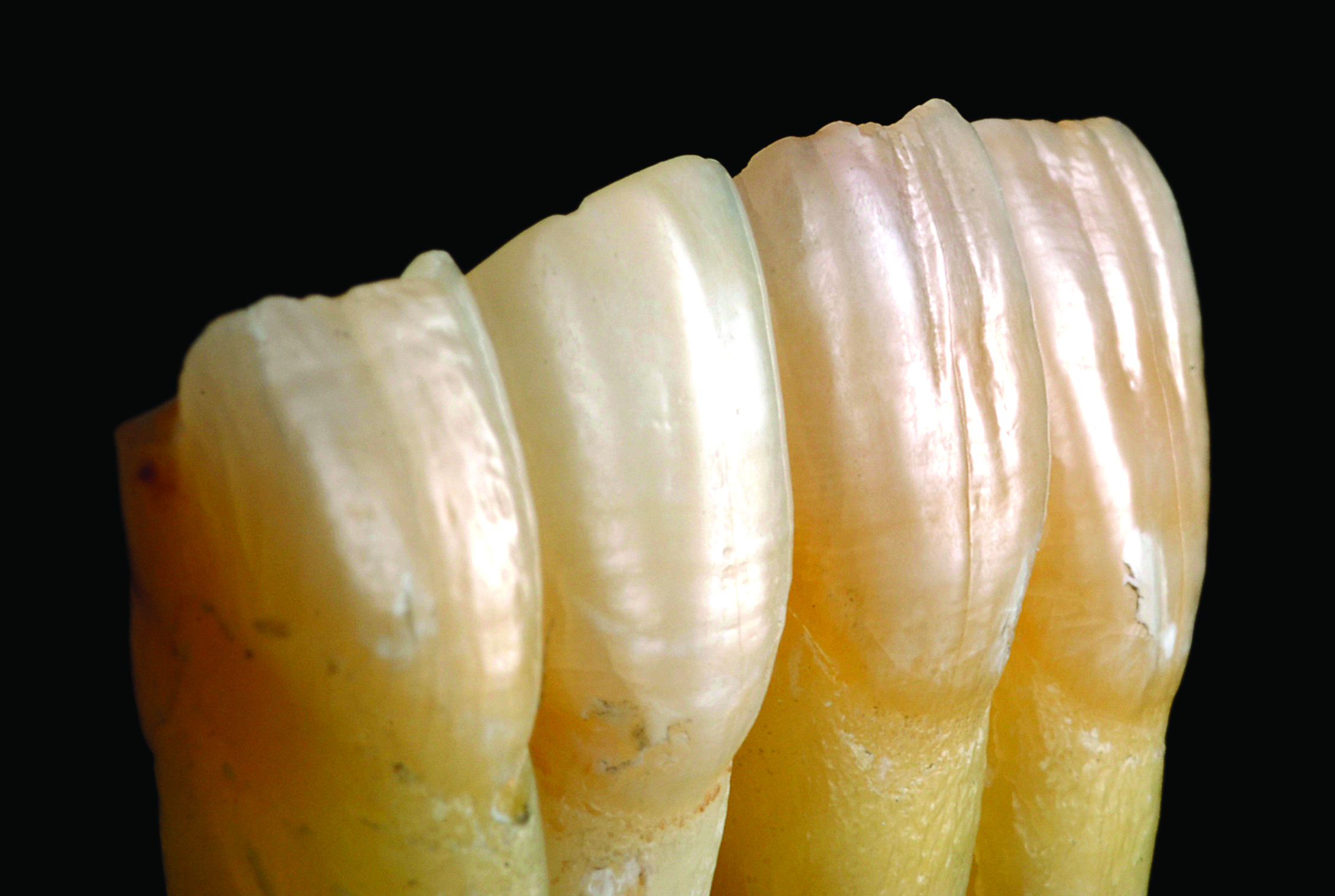 Occlusal considerations and strategies for GDP orthodontics, Tif Qureshi