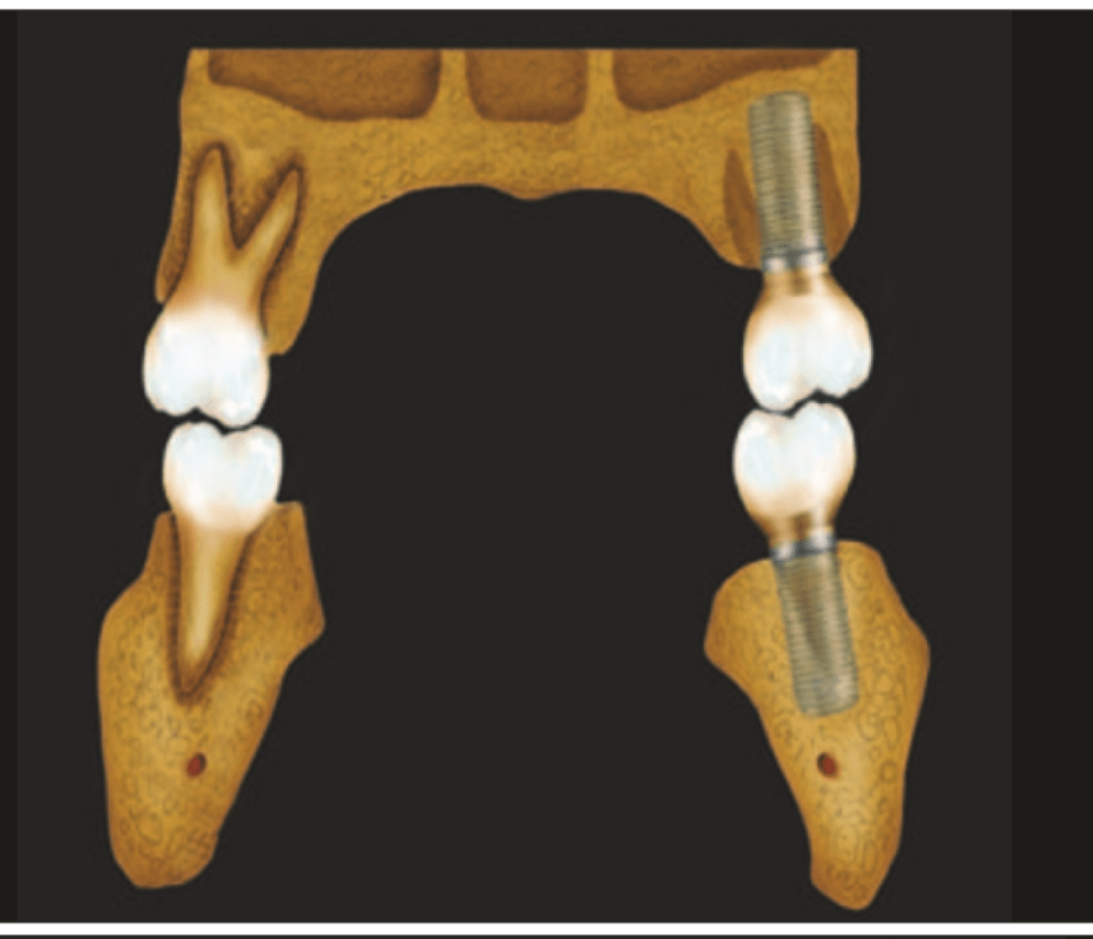 Dental Implant Fractures – Aetiology, Treatment and Case Report by Goiato