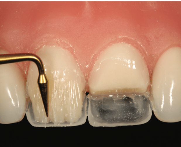 Step-by-Step Approaches for Anterior Direct Restorative Challenges by Fahl