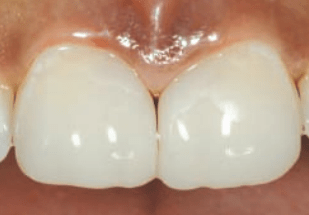 Advanced Techniques for Diastema Closure  by Clark et al.