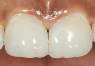 Advanced Techniques for Diastema Closure  by Clark et al.