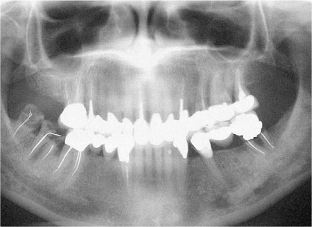 Experiencing the failing dentition: what dentists do by Hellyer