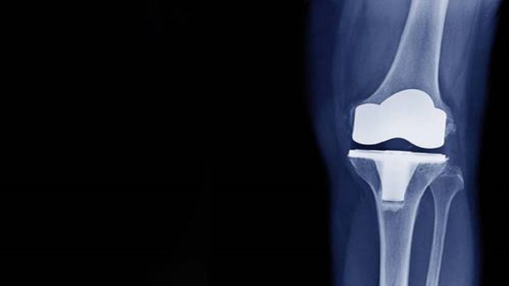 Nanocellulose as scaffold for bone tissue engineering