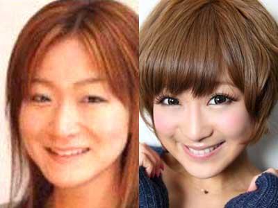 鈴木奈々 過去と現在