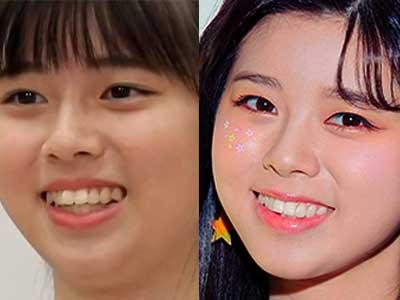NiziUリク 歯並び 比較画像