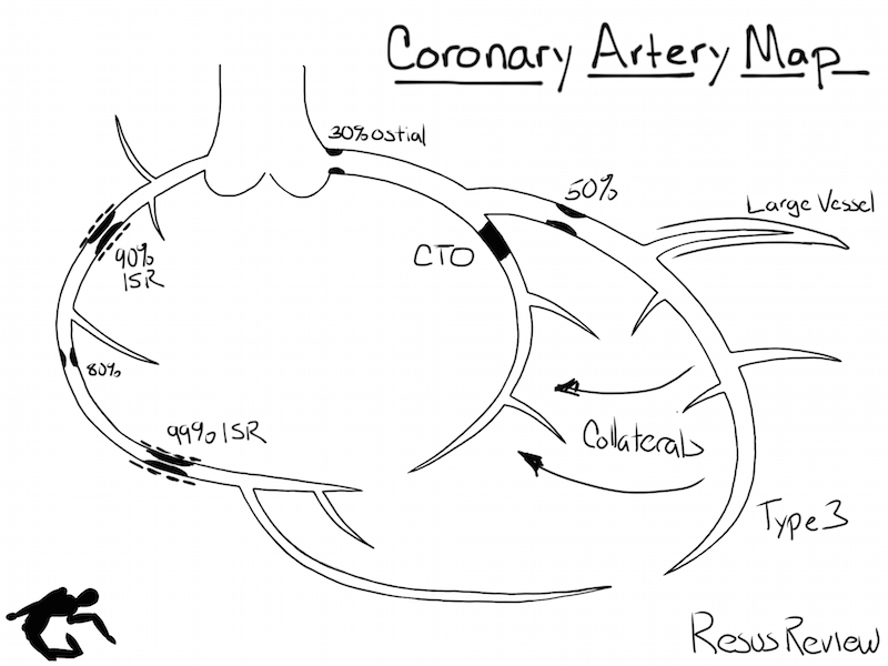 Diagram Coronary Arteries Diagram Branches Artery Anatomy