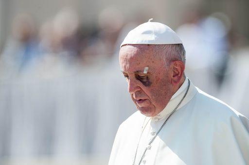"""Vittima di abuso, Alessandro al papa: """"Adesso mantieni la promessa"""""""