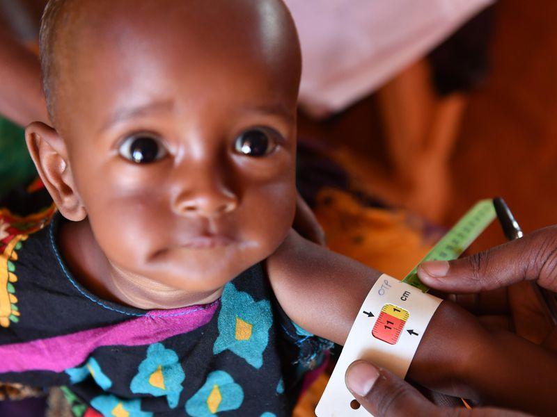 Malnutrition: Can It Be Prevented? - Reterdeen