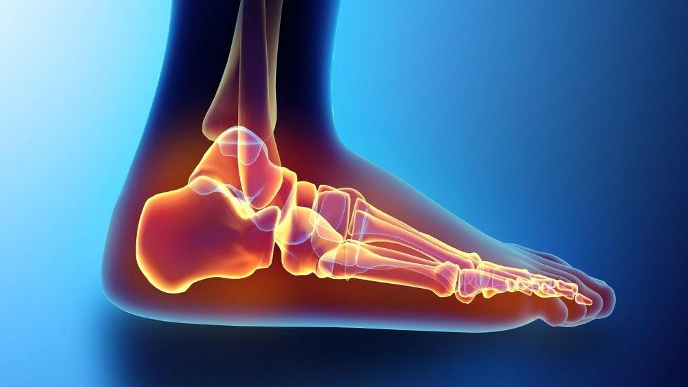 5 Modalități de a ușura durerea de călcâie