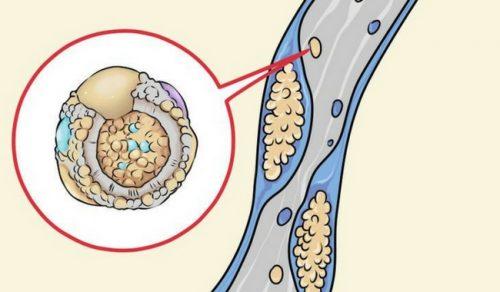 Ce alimente ajută la curățarea arterelor?
